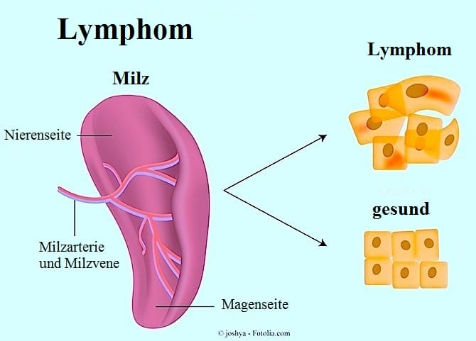 Hodgkin-Lymphom