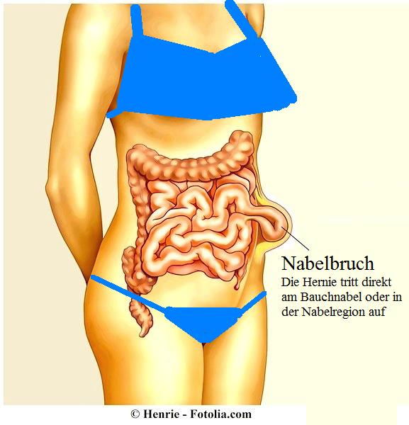Operation bei Nabelbruch