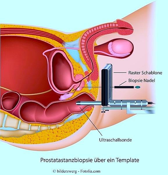 Biopsie,Prostata,Nadel,Ultaschallsonde