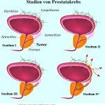 Prostatatumor