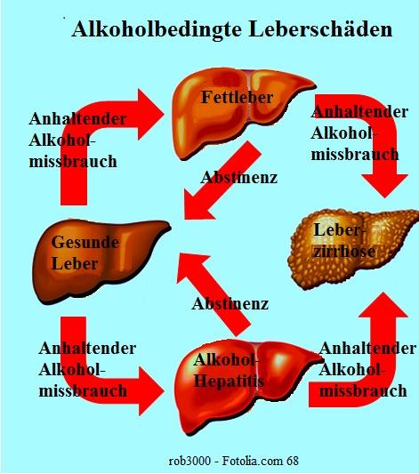 Therapie der Leberzirrhose