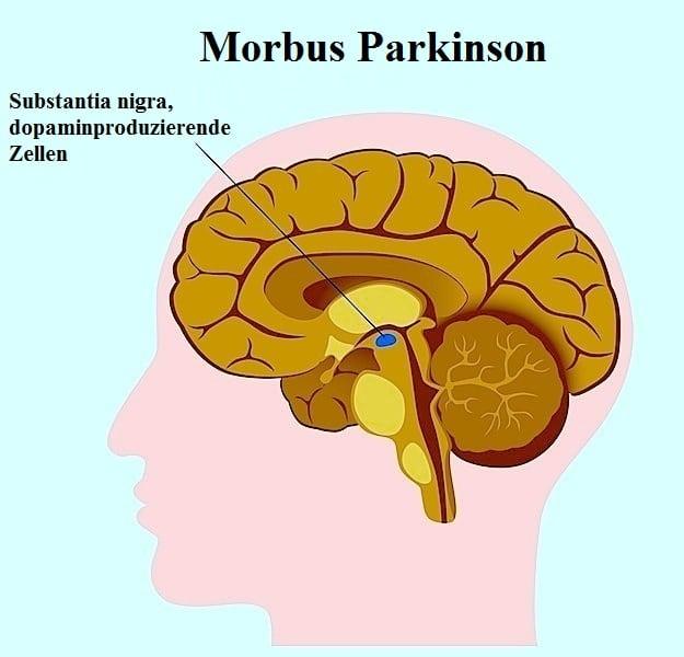 Morbus Parkinson,Substantia nigra,Gehirn,Bewegung