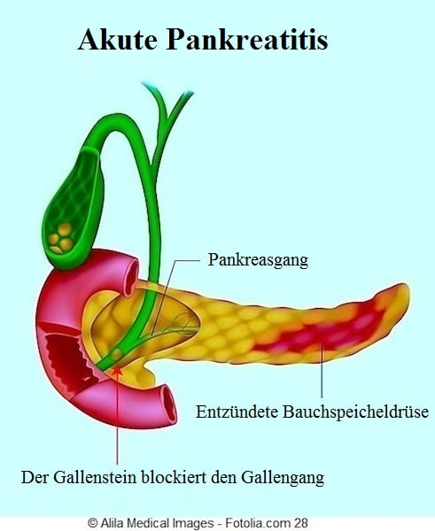 Pankreatitis,Pankreas,Entzündung,Symptome