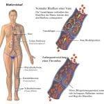 venöser Blutkreislauf,Klappen,Blut