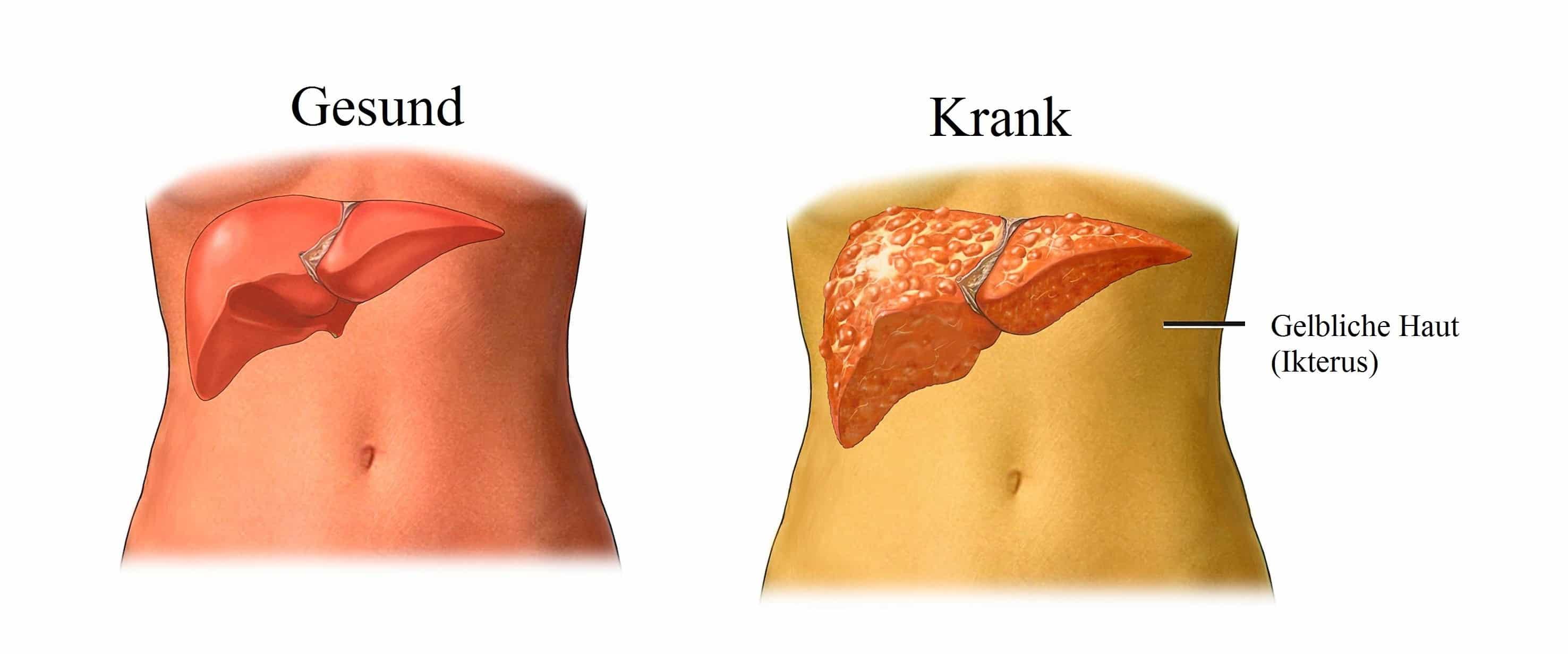 Lebertumor, Symptome und Ursachen, Stadium, Metastasen