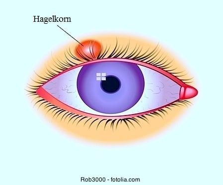 Hagelkorn und Gerstenkorn am Auge