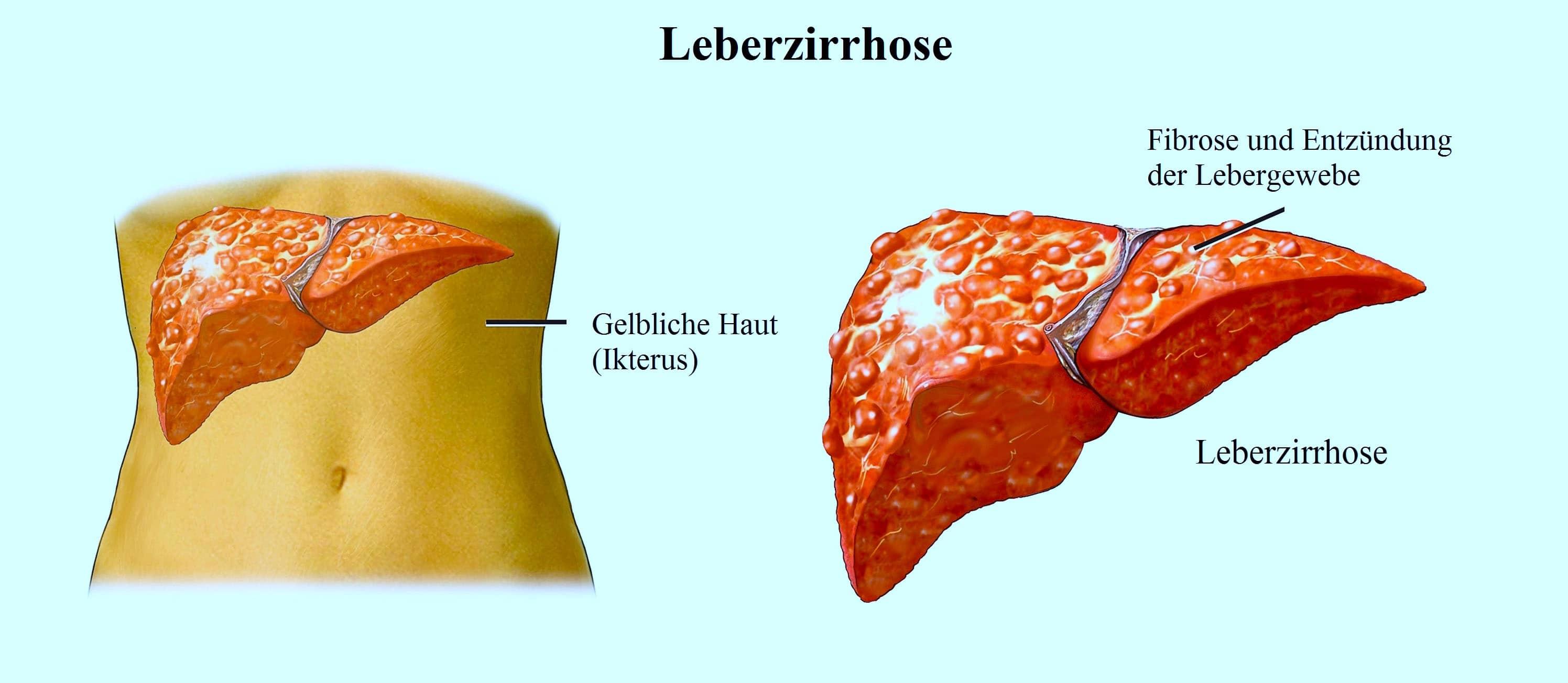 Leberzirrhose,Fibrose,Ikterus