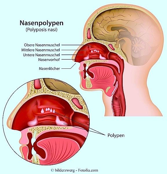Nasenpolypen,Nasenmuschel