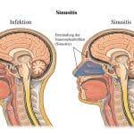 Sinusitis,Infektion,Nasennebenhöhlen