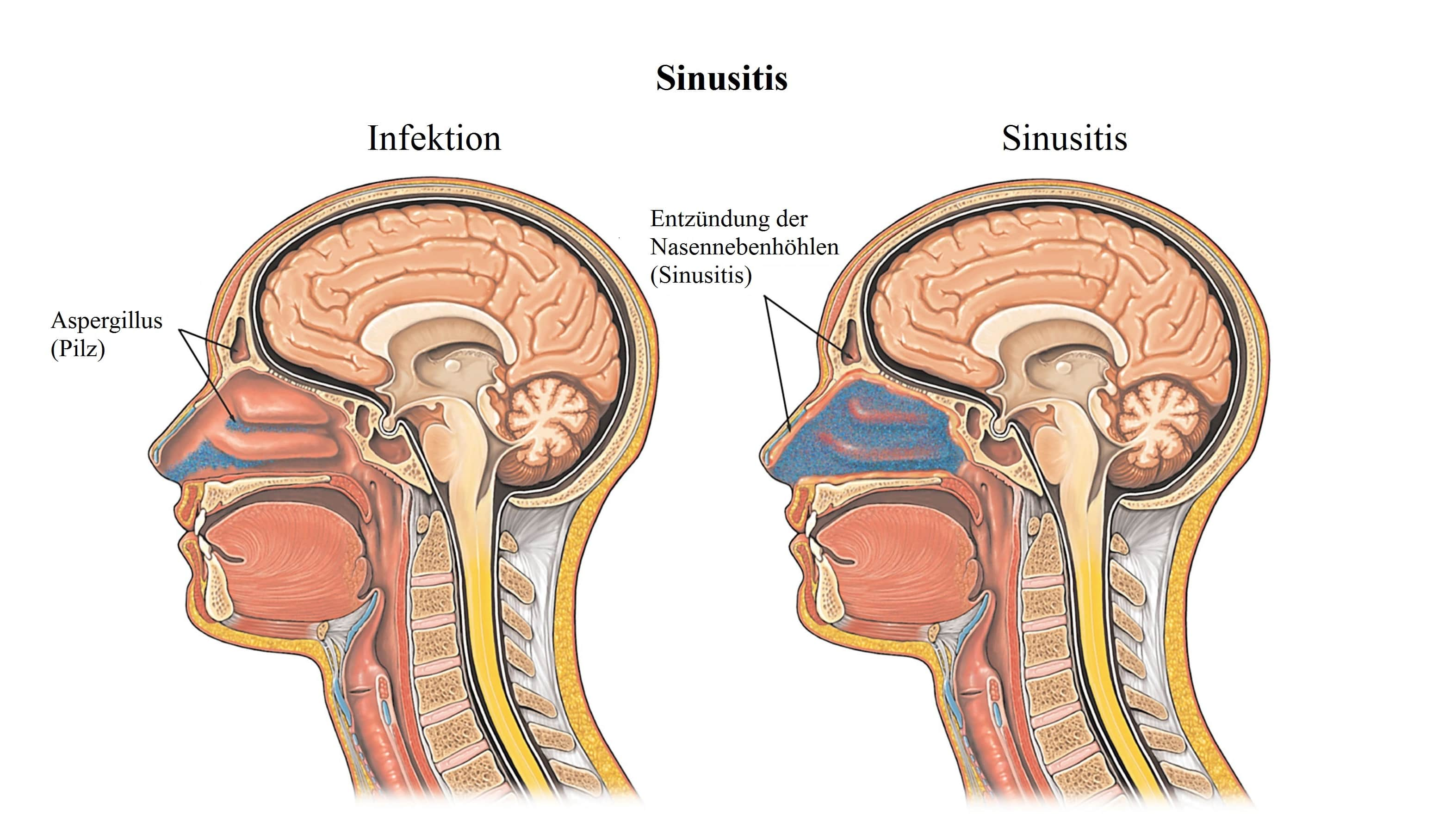 Sinusitis,Infektion,Nasennebenhöhlen