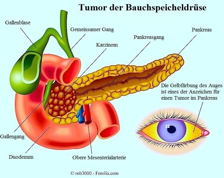 Tumor,Bauchspeicheldrüse,Pankresagang