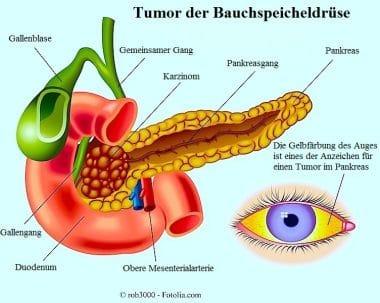 Tumor-der-Bauchspeicheldrüse