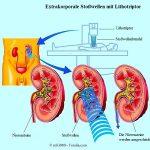 Nierensteine,Eingriff,Stoßwellen