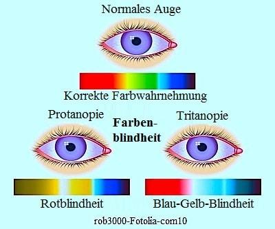 Farbenblindheit der Augen