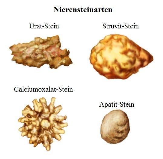 Nierensteinarten