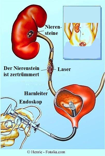 Nierensteine - Symptome und Behandlung