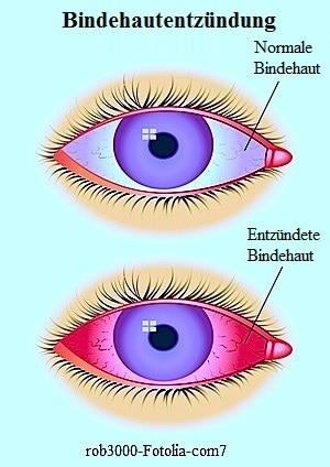 virale Konjunktivitis,bakteriell,gerötete Augen