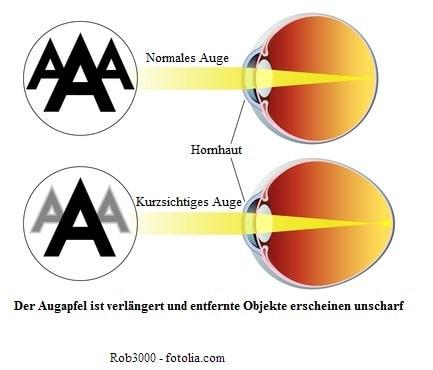 Kurzsichtigkeit und Laser
