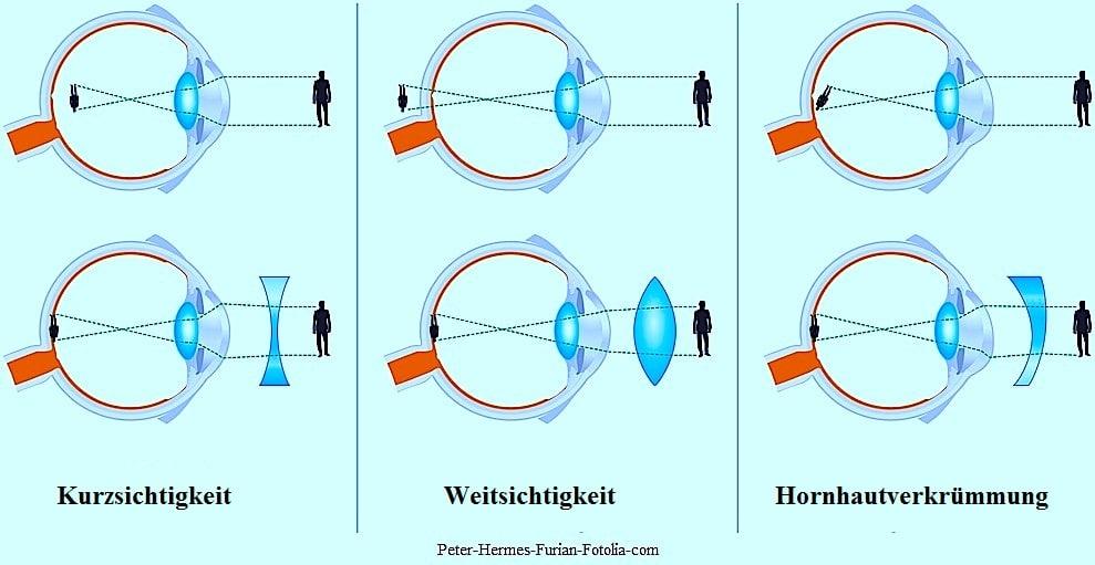 Weitsichtigkeit und Laser