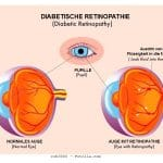 Diabetische Retinopathie,Blut,Blutung,Sehvermögen