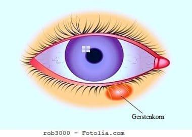 Gerstenkorn,Augenlid,Schwellung,Verdickung,Auge