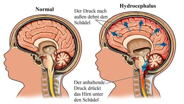 Hydrocephalus-Druck-Schädel-Hirn