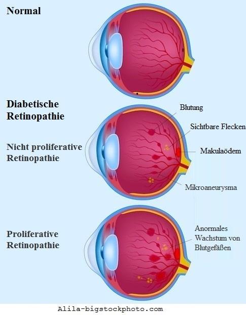 Diabetische Retinopathie,Neovaskularisation,Gefäße,Netzhaut