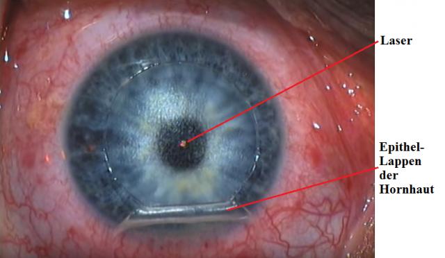 laser-lasik-Augen-OP.