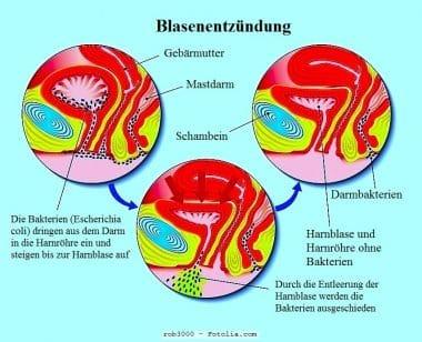 Blasenentzündung