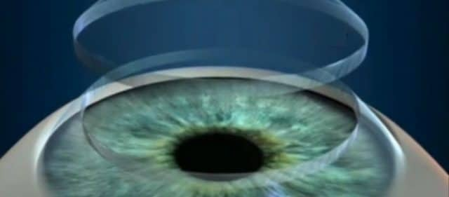 Hornhauttransplantation,Auge,