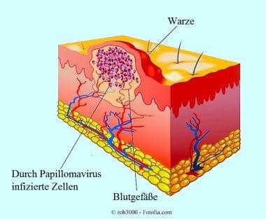 Papillom,Virus,Warzen,genital