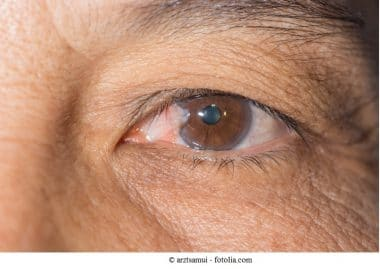 Pterygium,Fleck,Augen,Sehvermögen