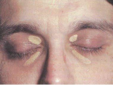 Xanthelasma,Anhäufung,Fett,Auge