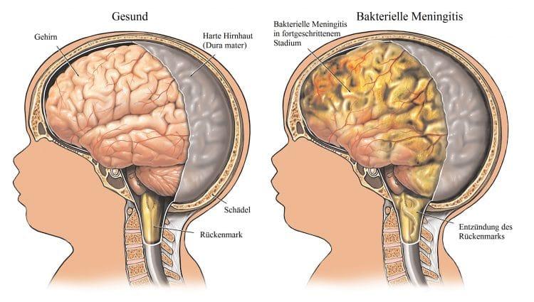 Bakterielle-Meningitis-Hirn-Schädel