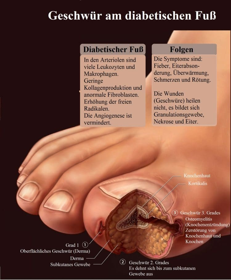 Geschwür-Diabetischer-Fuß-Folgen