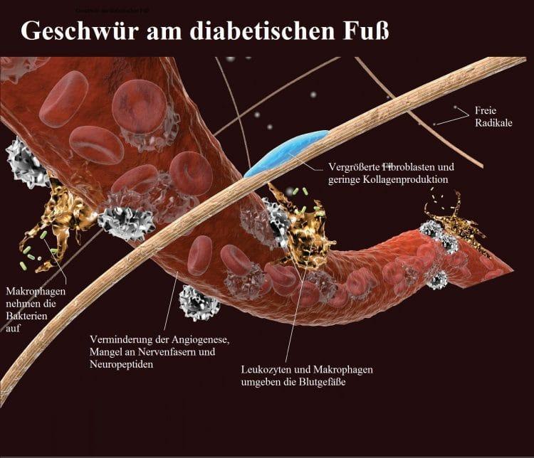 Geschwür-Diabetischer-Fuß-Angiogenese