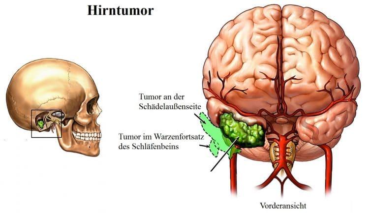 Hirntumor-Kraniotomie-Dura-mater