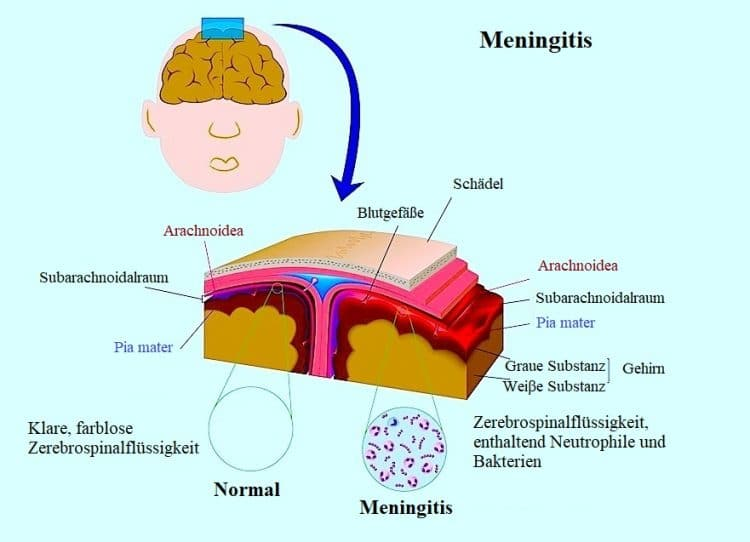 Symptome-Meningitis-viral-bakteriell
