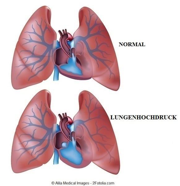 blutgasanalyse bei lungenembolie