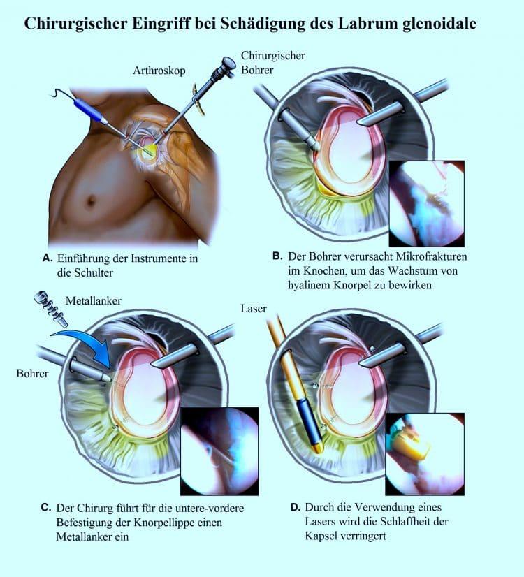 Eingriff-bei-Lippenläsion