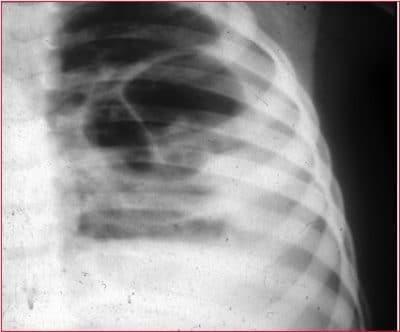 Alveoläre-Lungenentzündung