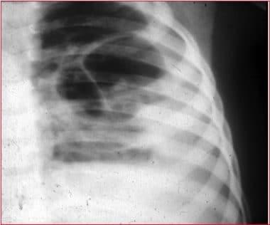 Röntgenaufnahme-des-Thorax