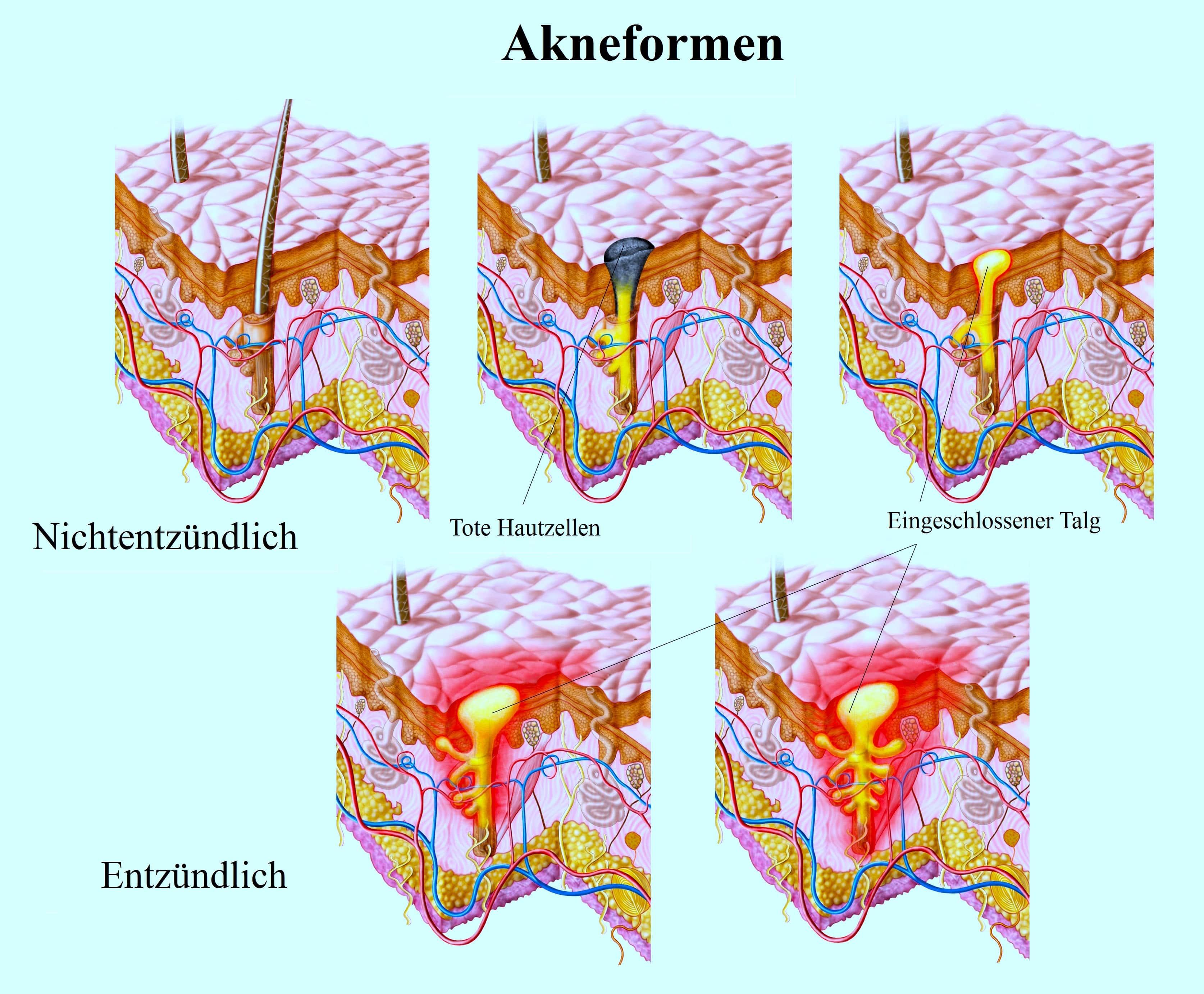 Akneformen, Entzündlich Hautzellen,Talg
