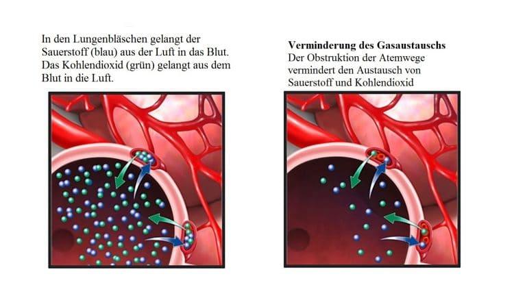 Chronische Bronchitis, Obstruktion, Atemwege
