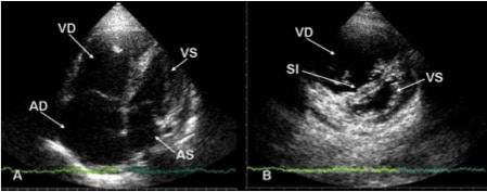 Echokardiogramm, Lungenembolie