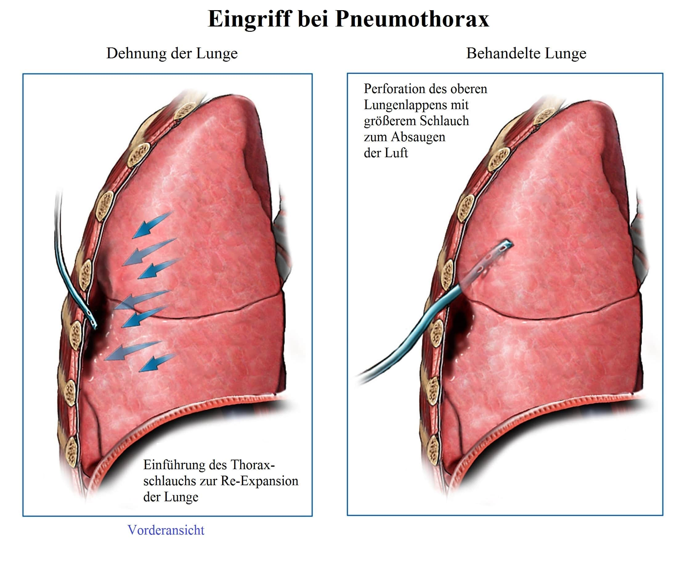 Eingriff, Pneumothorax, Schlauch, Expansion