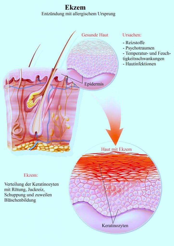 behandlung sonnen photoallergische reaktionen