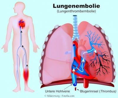 Lungenembolie, pulmonary embolism