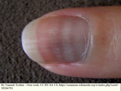 Mees Linien, Weiße Streifen auf den Nägel