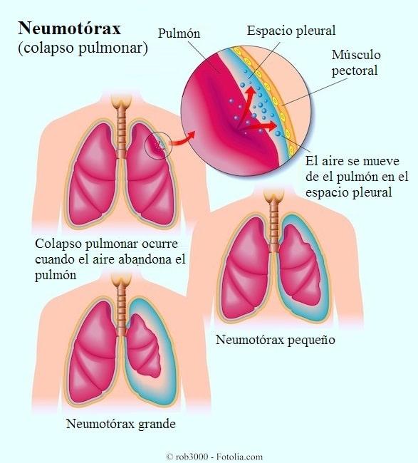 Offener, geschlossener und Spannungspneumothorax